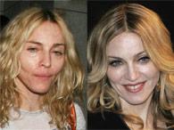 Famosos sem maquiagem